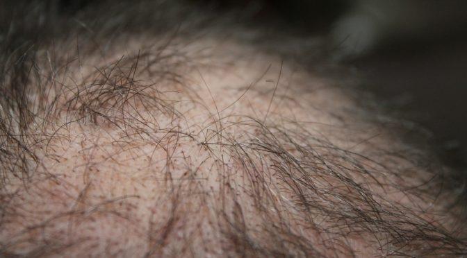 Haartransplantation, was ist möglich?